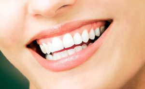 We have the best cosmetic veneers in Sydney.