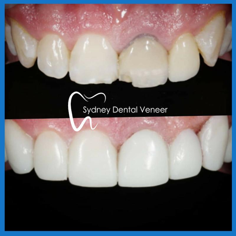 Best dental veneers in Sydney