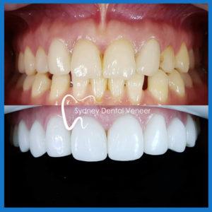 Affordable dental veneers in Sydney