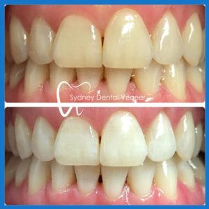 Affordable teeth whitening in Sydney