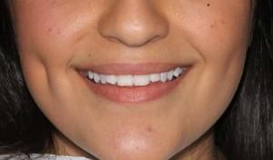 Sydney Dental Vineer