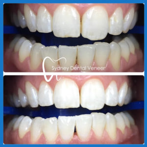 Best dentist for teeth whitening in Sydney