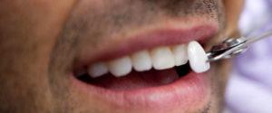 We have the best dental veneers in Sydney.