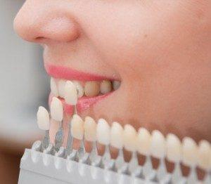 We are the best dentistry for dental veneers in Sydney.