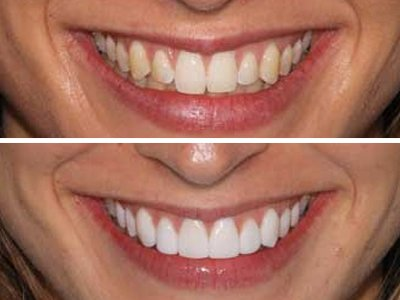 Dental-Veneers-Sydney