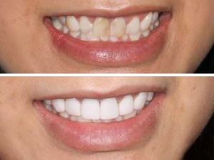 A dramatic before and after with dental veneers